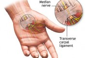 Carpal Tunnel Syndrome Pain Relief