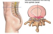 Herniated Disc Pain